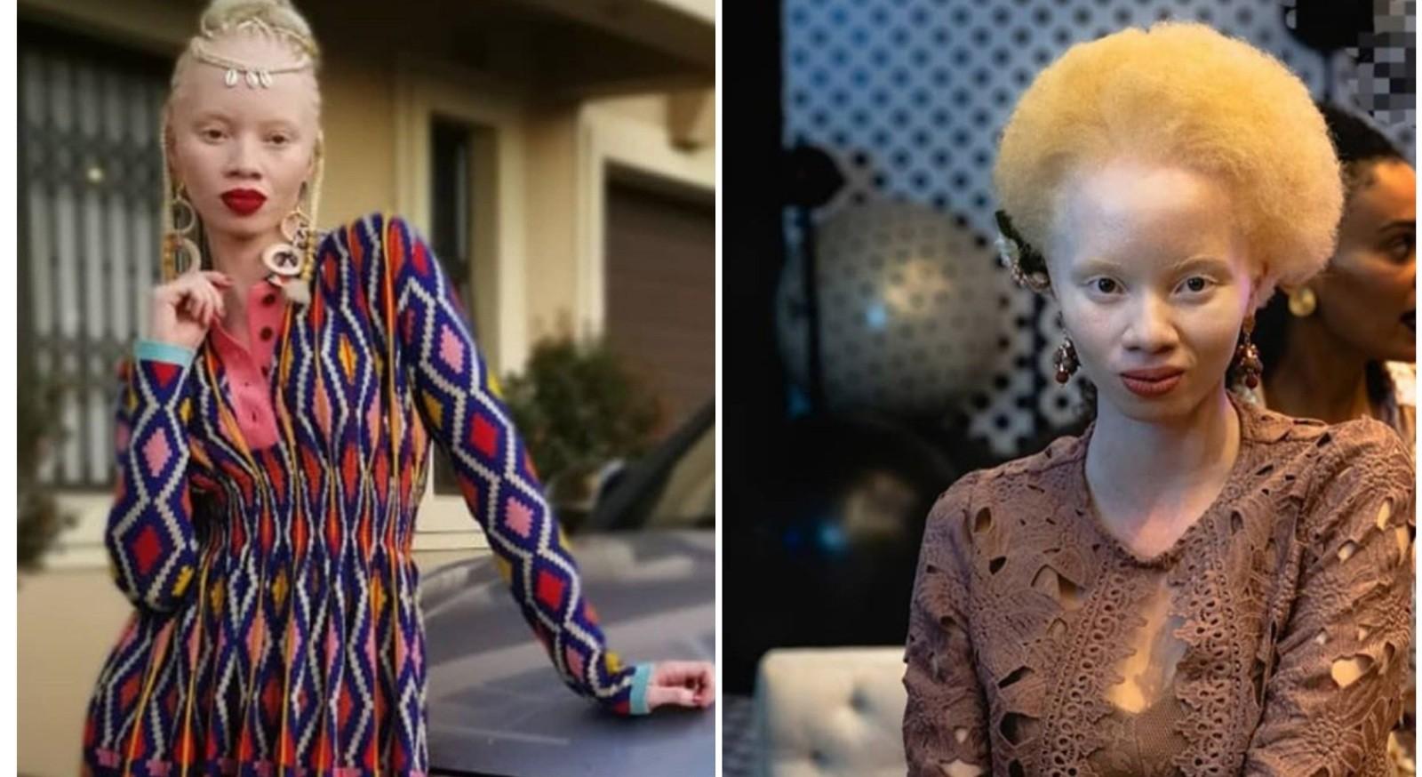 модель-альбинос